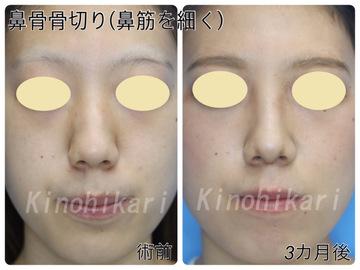 樹のひかり 形成外科・皮ふ科の鼻の整形の症例写真