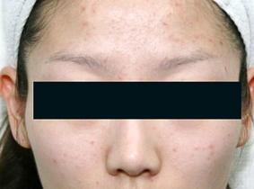 のその他の美容皮膚科治療の症例写真[ビフォー]