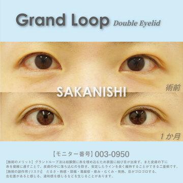 湘南美容クリニック 渋谷院の目・二重の整形の症例写真