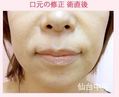 仙台中央クリニックの口もと、唇の整形の症例写真[アフター]