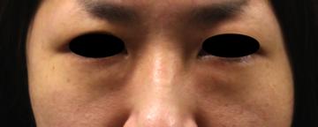 の目元整形・クマ治療の症例写真[ビフォー]