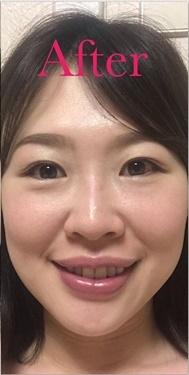 下眼瞼脱脂術の症例写真[アフター]