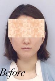 表参道スキンクリニックの症例写真[ビフォー]