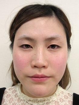 品川美容外科の目・二重整形の症例写真[ビフォー]