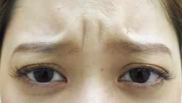 タウン形成外科クリニックの顔のしわ・たるみの整形(リフトアップ手術)の症例写真[ビフォー]