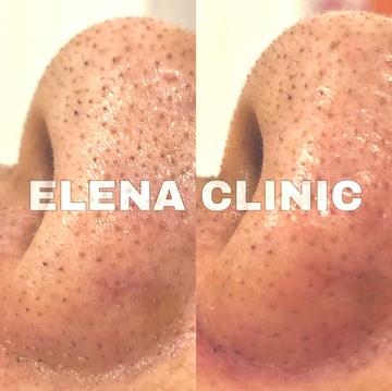 エレナクリニック 新宿本院のシミ治療(シミ取り)・肝斑・毛穴治療の症例写真