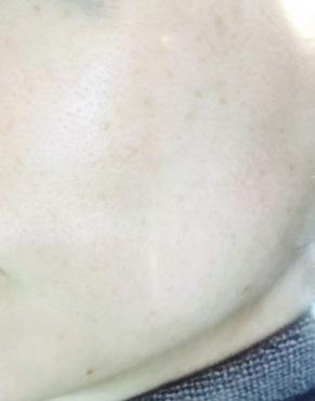 院内で人気のシミ取り治療【フォトシルク・プラス】の症例写真[アフター]