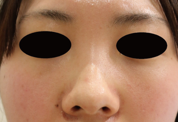 すなおクリニックの鼻の整形の症例写真[ビフォー]