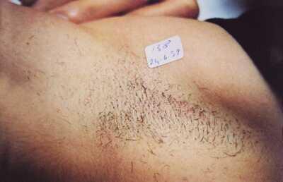 脇の医療脱毛の症例写真[ビフォー]