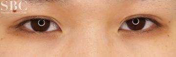 湘南美容クリニック 姫路院の目・二重の整形の症例写真[アフター]