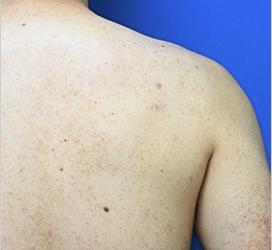 オザキクリニック LUXE新宿のその他の美容皮膚科治療の症例写真[ビフォー]