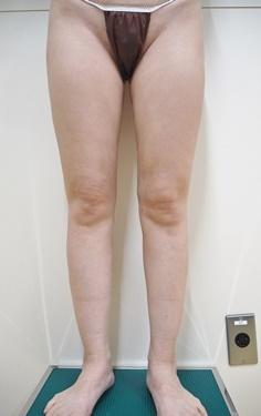 太もも・ふくらはぎ脂肪吸引※の症例写真[アフター]