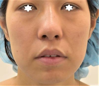30代女性 顎骨切り 左8㎜ 右7.5㎜ N0.52の症例写真[ビフォー]