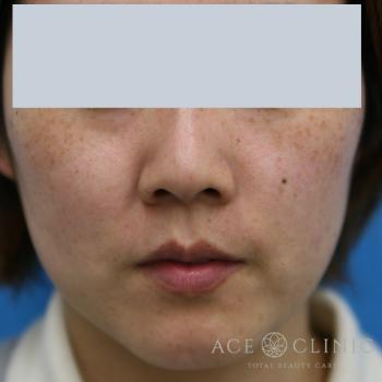 エースクリニックのシミ治療(シミ取り)・肝斑・毛穴治療の症例写真[ビフォー]