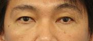 湘南美容クリニック町田院の目元の整形、くま治療の症例写真[アフター]