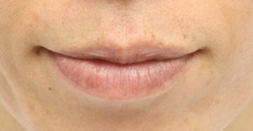 よだ形成外科クリニックの口もと、唇の整形の症例写真[ビフォー]