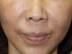 すず美容形成外科医院 【女性専門クリニック】の鼻の整形の症例写真[ビフォー]