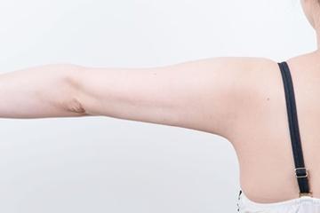 新宿中央クリニックの脂肪吸引の症例写真[アフター]