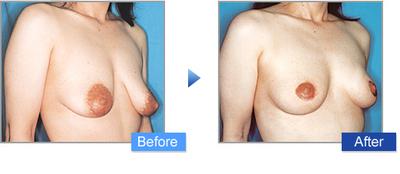コムロ式乳房吊り上げ術(マストペクシー)の症例写真