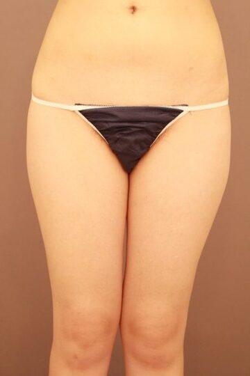 Mods Clinic (モッズクリニック)の脂肪吸引の症例写真[ビフォー]