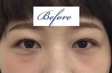 東郷美容形成外科福岡の目・二重の整形の症例写真[ビフォー]