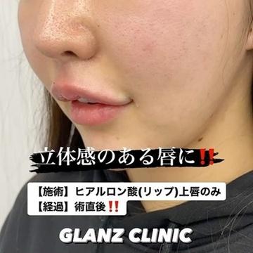 GLANZ CLINIC (グランツクリニック)の口元・唇の整形の症例写真