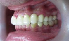 メタルボンドクラウン法による虫歯治療の症例写真の症例写真[アフター]