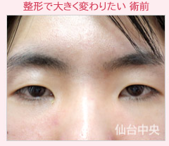 仙台中央クリニックの目・二重の整形の症例写真[ビフォー]