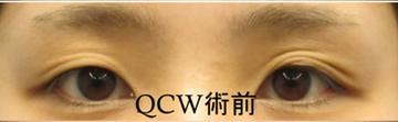 湘南美容クリニック 品川院の目・二重の整形の症例写真[ビフォー]