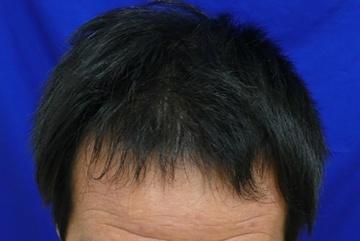 広島プルミエクリニックの薄毛治療の症例写真[アフター]