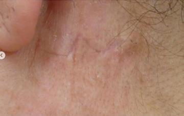 広島プルミエクリニックのタトゥー除去(刺青・入れ墨を消す治療)の症例写真[アフター]