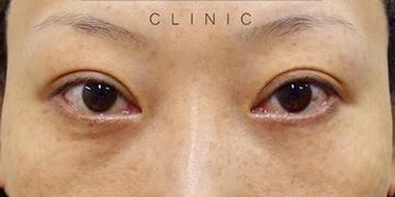 SELECT CLINIC (セレクトクリニック)の目元の整形、くま治療の症例写真[アフター]