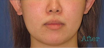 トキコクリニック 京都四条院のシミ治療(シミ取り)・肝斑・毛穴治療の症例写真[アフター]