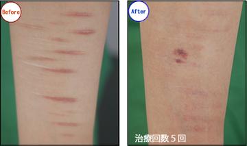 共立美容外科・歯科の傷跡治療、ケロイドの症例写真