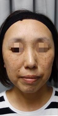SELECT CLINIC(セレクトクリニック)のシミ治療(シミ取り)・肝斑・毛穴治療の症例写真[ビフォー]