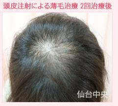 頭皮注射による薄毛治療の症例写真[アフター]