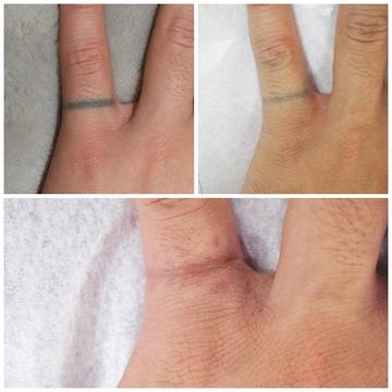 タウン形成外科クリニックのタトゥー除去(刺青・入れ墨を消す治療)の症例写真