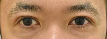 タウン形成外科クリニックの目・二重整形の症例写真[ビフォー]