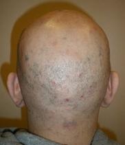 恵聖会クリニックの薄毛治療・AGA・発毛の症例写真[ビフォー]