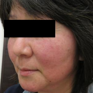 はなふさ皮膚科のシミ治療(シミ取り)・肝斑・毛穴治療の症例写真[ビフォー]