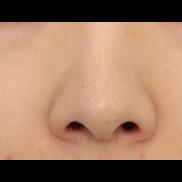 ヴェリテクリニック名古屋の鼻の整形の症例写真[ビフォー]