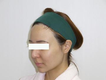 恵比寿ASクリニックの顔の整形(輪郭・顎の整形)の症例写真[ビフォー]