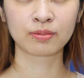 オザキクリニック LUXE新宿の口もと、唇の整形の症例写真[アフター]
