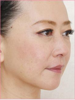 ■PRP療法(目の下・ほうれい線)の症例写真[アフター]