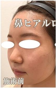 西宮SHUHEI美容クリニックの鼻の整形の症例写真[ビフォー]