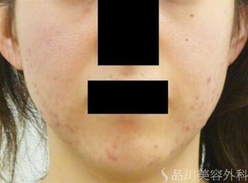 品川美容外科のニキビ治療・ニキビ跡の治療の症例写真[ビフォー]