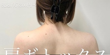 ルラ美容クリニックのその他の美容皮膚科治療の症例写真[ビフォー]