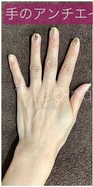 La Clinique Ginza(ラ クリニック銀座)のその他の美容皮膚科治療の症例写真[ビフォー]