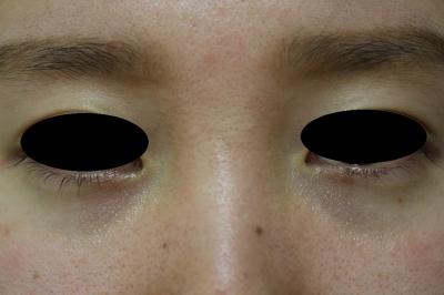 若い女性の涙袋へのヒアルロン酸注入の症例写真[ビフォー]
