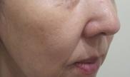 エルクリニックのシワ・たるみ(照射系リフトアップ治療)の症例写真[ビフォー]